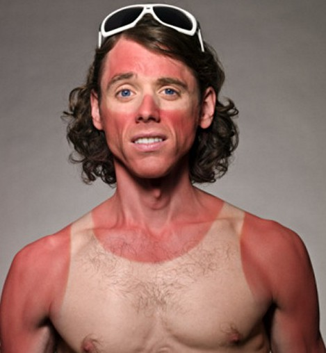 guy with bad sunburn